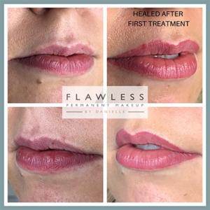 Gallery Lips 3 13-07